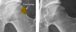 (Left) X-ray shows a cam bump on the femoral head. (Right) After the bump has been shaved down during surgery. Reproduced from Diaz-Ledezma C, Higuera CA, Parvizi J: Mini-open approach for the treatment of FAI in Sierra RJ, ed: Femoracetabular Impingement. Rosemont, IL, American Acad of Orthopaedic Surgeons, 2013, pp 81-91.